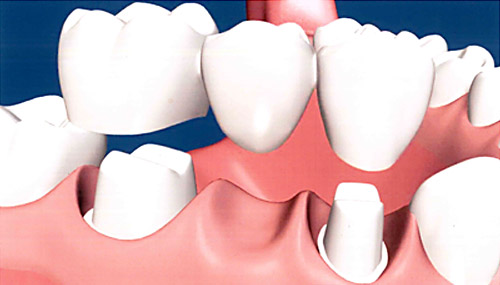 Dental Bridges in Merced, CA