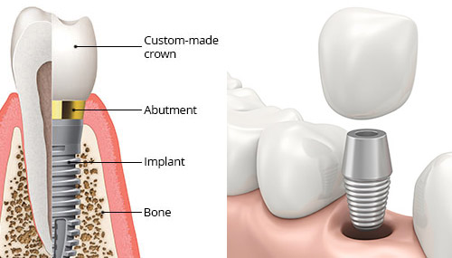 Dental Implants in Merced, CA